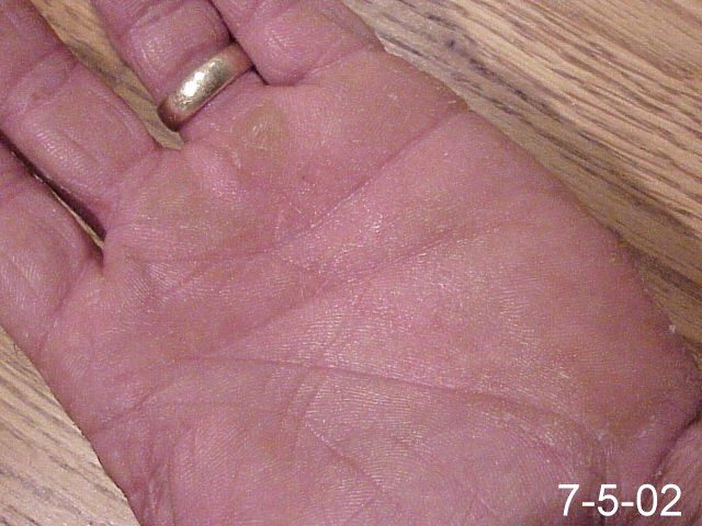 Emu Oil for Skin & Nail Fungus | Topical Antifungal for Sale